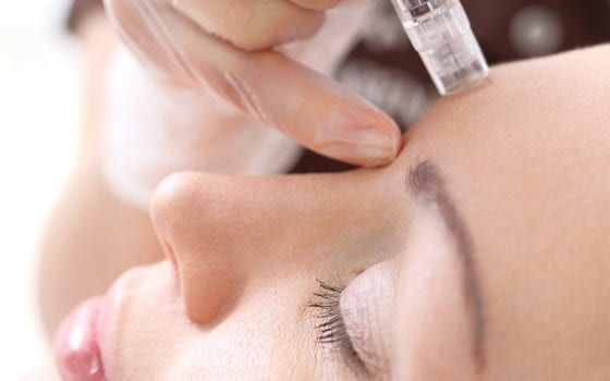 Bring on the Needles… Microneedling that is!