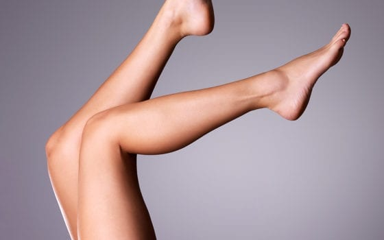 Say Goodbye to Spider Veins!
